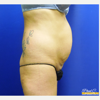 25-34 year old woman treated with Liposuction before 3576837