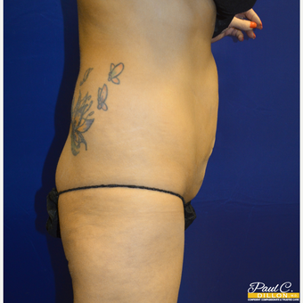 25-34 year old woman treated with Liposuction after 3576837