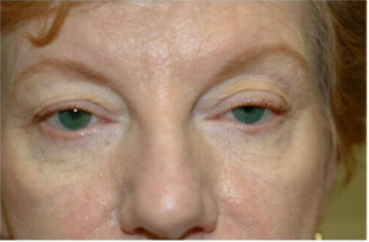65-74 year old woman treated with Eye Bags Treatment