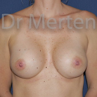 35-44 year old woman treated with Breast Augmentation after 3595503