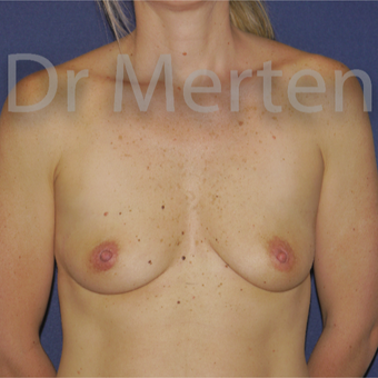 35-44 year old woman treated with Breast Augmentation before 3595503