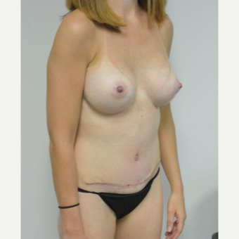 35-44 year old woman treated with Mommy Makeover after 3282974