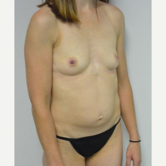 35-44 year old woman treated with Mommy Makeover before 3282974