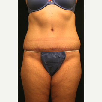 35-44 year old woman treated with Tummy Tuck after 2860556