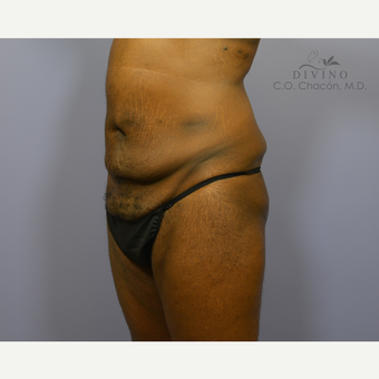 45-54 year old man treated with Male Tummy Tuck before 3421552
