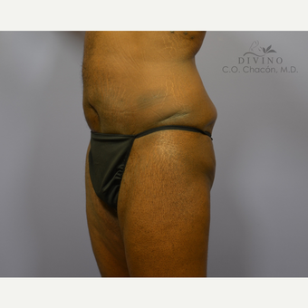 45-54 year old man treated with Male Tummy Tuck after 3421552