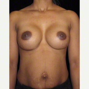 40 year old woman treated with Breast Augmentation after 3103637