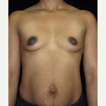 40 year old woman treated with Breast Augmentation before 3103637