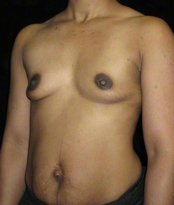 40 year old woman treated with Breast Augmentation 3103637