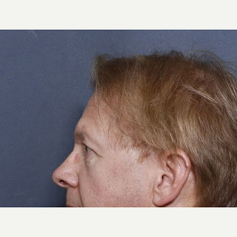 55-64 year old man treated with Ear Surgery (view 2 of 2) before 3180692