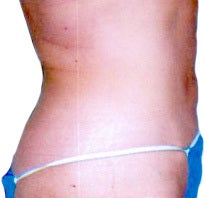 Smart Lipo after 1045777