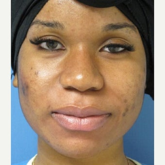 18-24 year old woman treated with African American Rhinoplasty before 2435117