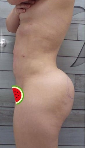 25-34 year old woman treated with Slim Lipo after 3496209