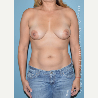 35-44 year old woman treated with Breast Lift before 2993965