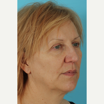 55-64 year old woman treated with Facelift before 3691408