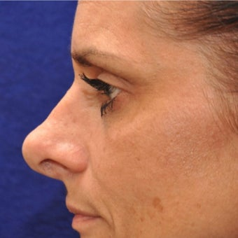 Revision Rhinoplasty before 2278932