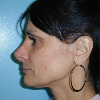 Revision Rhinoplasty after 2278932