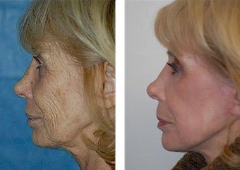 Deep Plane Facelift, CO2 Laser before 308133