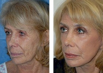 Deep Plane Facelift, CO2 Laser after 308133