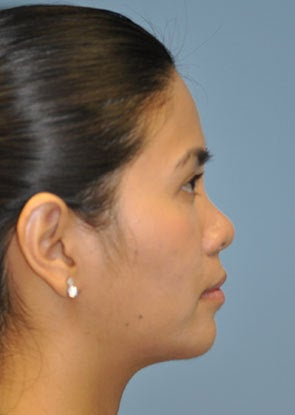 Young Asian female underwent Non-surgical Rhinoplasty