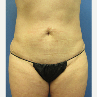 45-54 year old woman treated with Tummy Tuck after 3057325