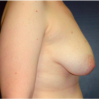 49 year old woman treated with Breast Lift with Implants before 3665973