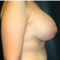 49 year old woman treated with Breast Lift with Implants after 3665973