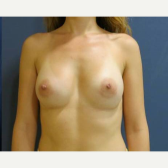 25-34 year old woman treated with Breast Augmentation after 3480377