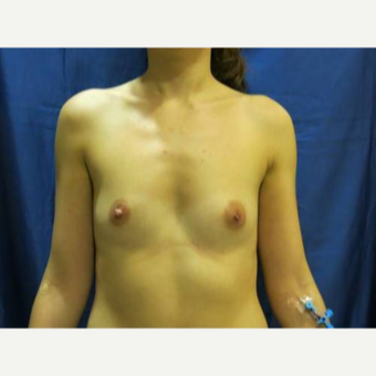 25-34 year old woman treated with Breast Augmentation before 3480377