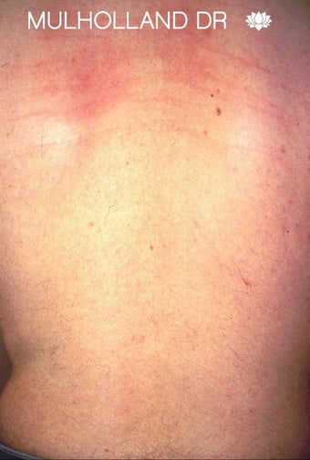 Laser Hair Removal on a Male Patient's Back