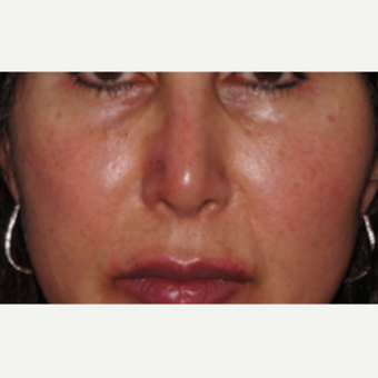 45-54 year old woman treated with Restylane to the nose and lips after 2831069