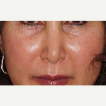 45-54 year old woman treated with Restylane to the nose and lips before 2831069