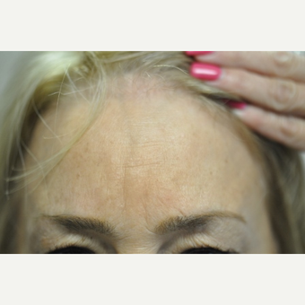 55-64 year old woman treated with Botox after 2810142
