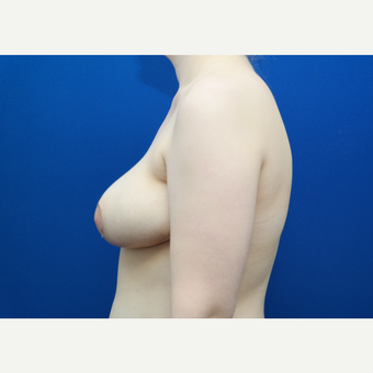 25-34 year old woman treated with Breast Reduction after 3103910