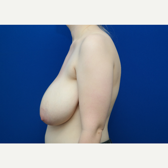 25-34 year old woman treated with Breast Reduction before 3103910