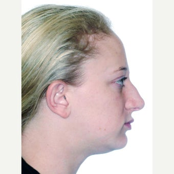 18-24 year old woman treated with Orthognathic Surgery before 1539157