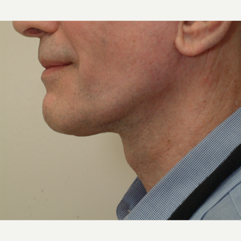 65-74 year old man treated with Neck Lift after 3763993