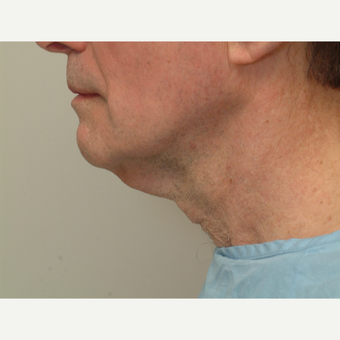 65-74 year old man treated with Neck Lift before 3763993