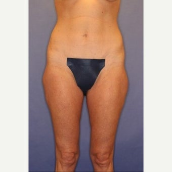 45-54 year old woman treated with Thigh Lift