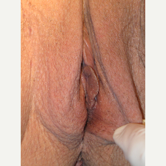 "64 y.o.  woman wishing to ""rejuvenate"" the appearance of her vulva with labia labia majoraplasty. before 3698856"