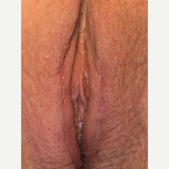 "64 y.o.  woman wishing to ""rejuvenate"" the appearance of her vulva with labia labia majoraplasty. after 3698856"
