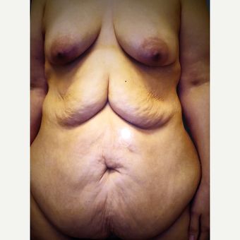 55-64 year old woman treated with Body Lift before 3333504