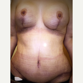55-64 year old woman treated with Body Lift after 3333504