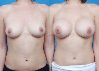 Breast Augmentation with Silicone Implants before 677058