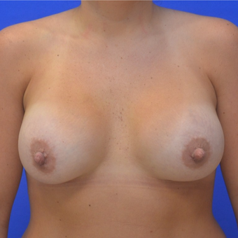 25-34 year old woman treated with Breast Augmentation after 3299292
