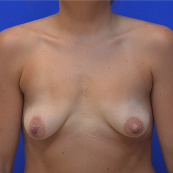 25-34 year old woman treated with Breast Augmentation before 3299292