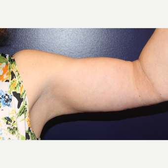55-64 year old woman treated with Arm Lift after 3225174