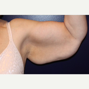 55-64 year old woman treated with Arm Lift before 3225174