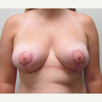 Breast Reduction with Breast Symmetry for this 41 Year Old Woman after 3003213