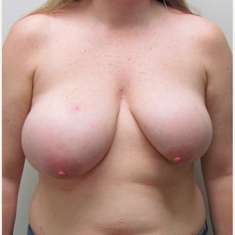 Breast Reduction with Breast Symmetry for this 41 Year Old Woman before 3003213